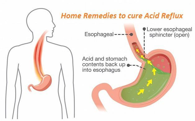 As Gastro home remedies to cure acid reflux gerd acid reflux frequently
