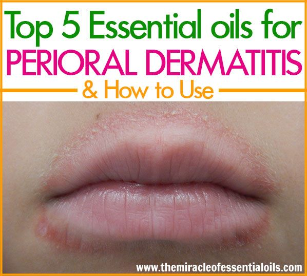 Top 5 Essential Oils For Perioral Dermatitis & How To Use