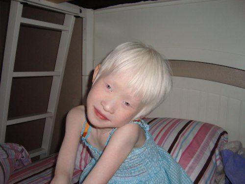 This little albino Asian girl... OMG! She's adorable ...