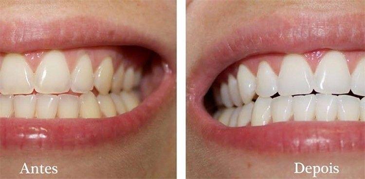 Como Clarear Os Dentes Rapido Em Casa Dentes Pasta E Tips