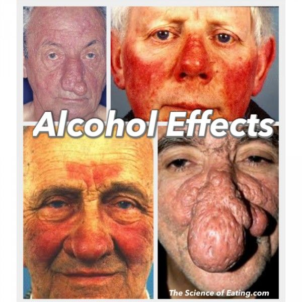 Alcohol facial swelling