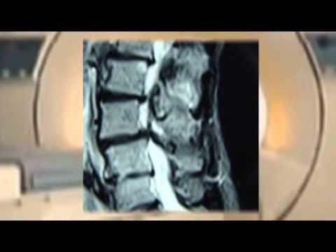 Грыжа диска: оперировать или лечить? - YouTube