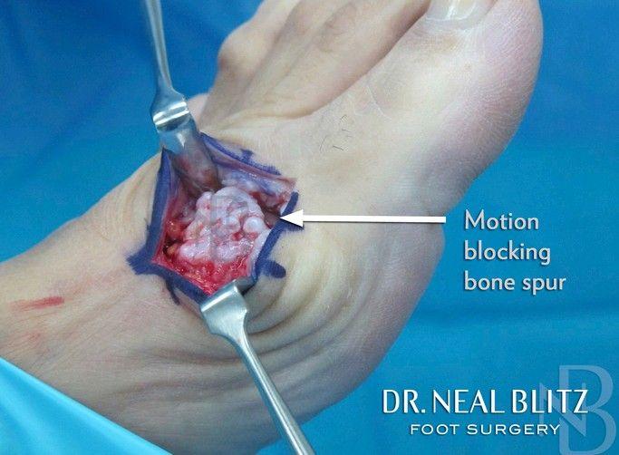 Dr  Neal Blitz