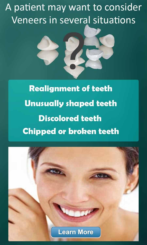 Philadelphia Dentist Dental Veneers Dr. Spilkia offers