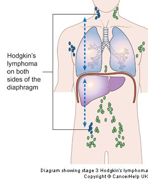 hodgkin's lymphoma stages | diagram showing stage 3 hodgkin's lymphoma