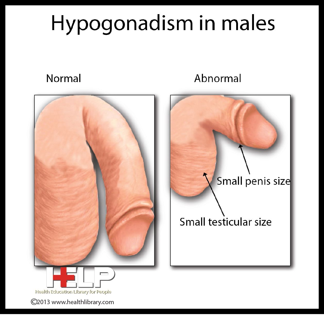 hypogonadism in males | male reproductive system | pinterest | in, Skeleton