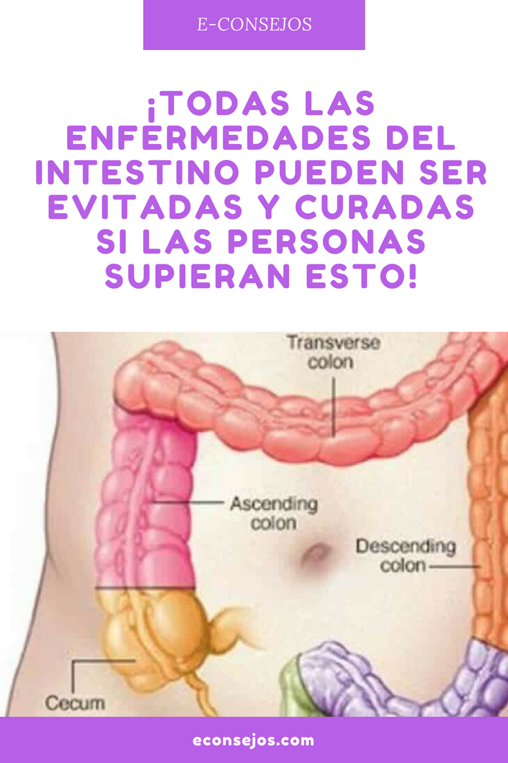Dieta para diverticulitis colon irritable