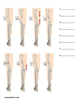 types of fractures identification quiz or worksheet anatomy identification for anatomy. Black Bedroom Furniture Sets. Home Design Ideas