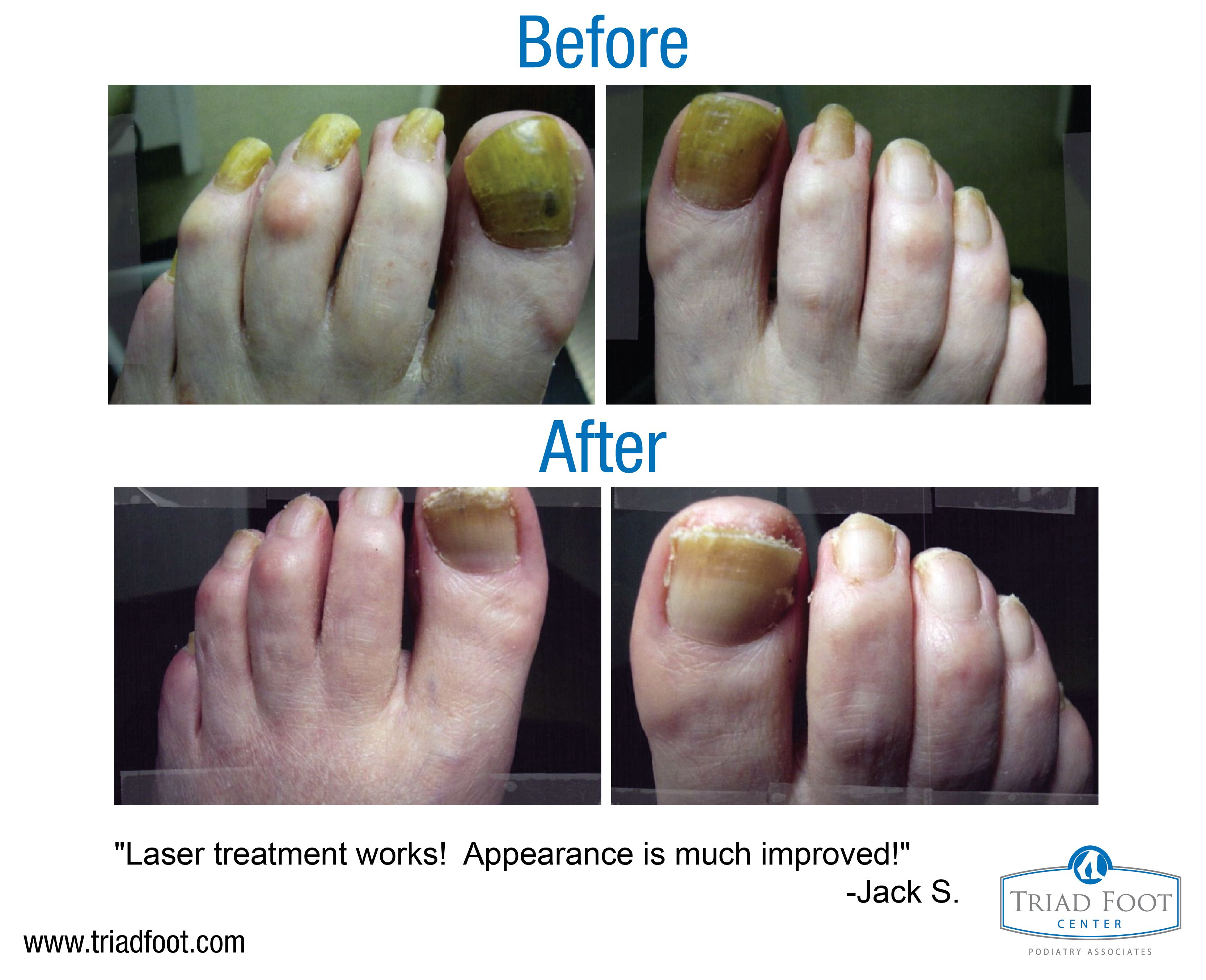 Jack was embarrassed by his unsightly toenails After laser