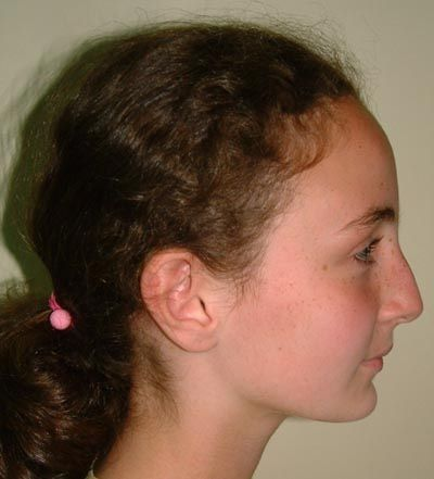 2 convex profile has a receding forehead and chin the best
