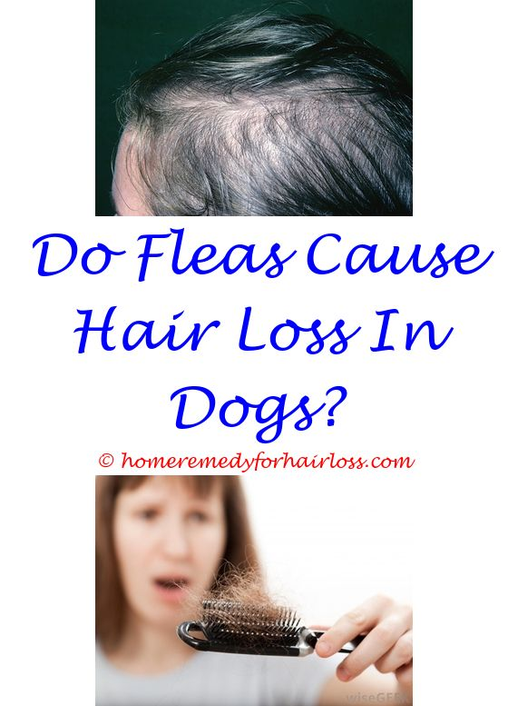 What Causes Massive Hair Loss Hair Loss Male Hair Loss And Hair
