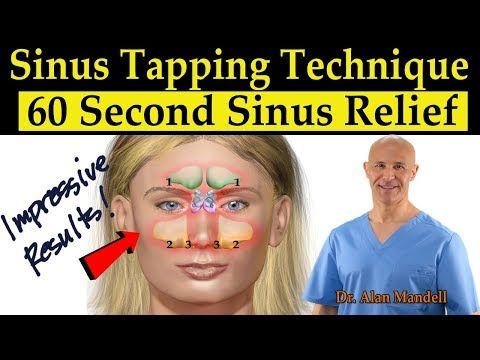 Can You Get Headaches From Allergies Dr Mandell S Sinus Tapping Technique 60 Second Sinus Drainage Relief Headaches Tinnitus Youtube Sinus Drainage Natural Headache Remedies Sinus Relief