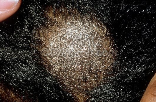 Ringworm On The Scalp Image Source Dermnet Scabs And