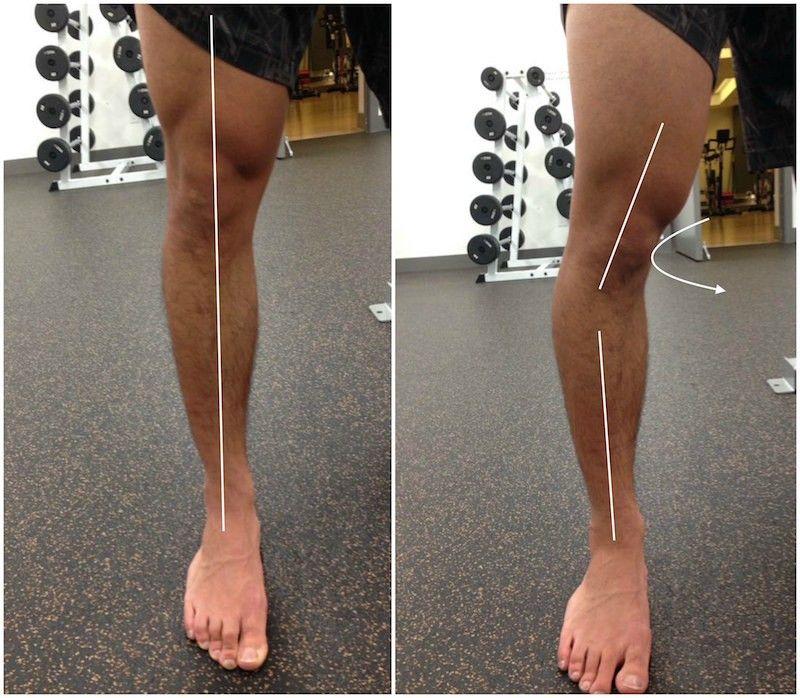 44++ Flat feet big calves trends