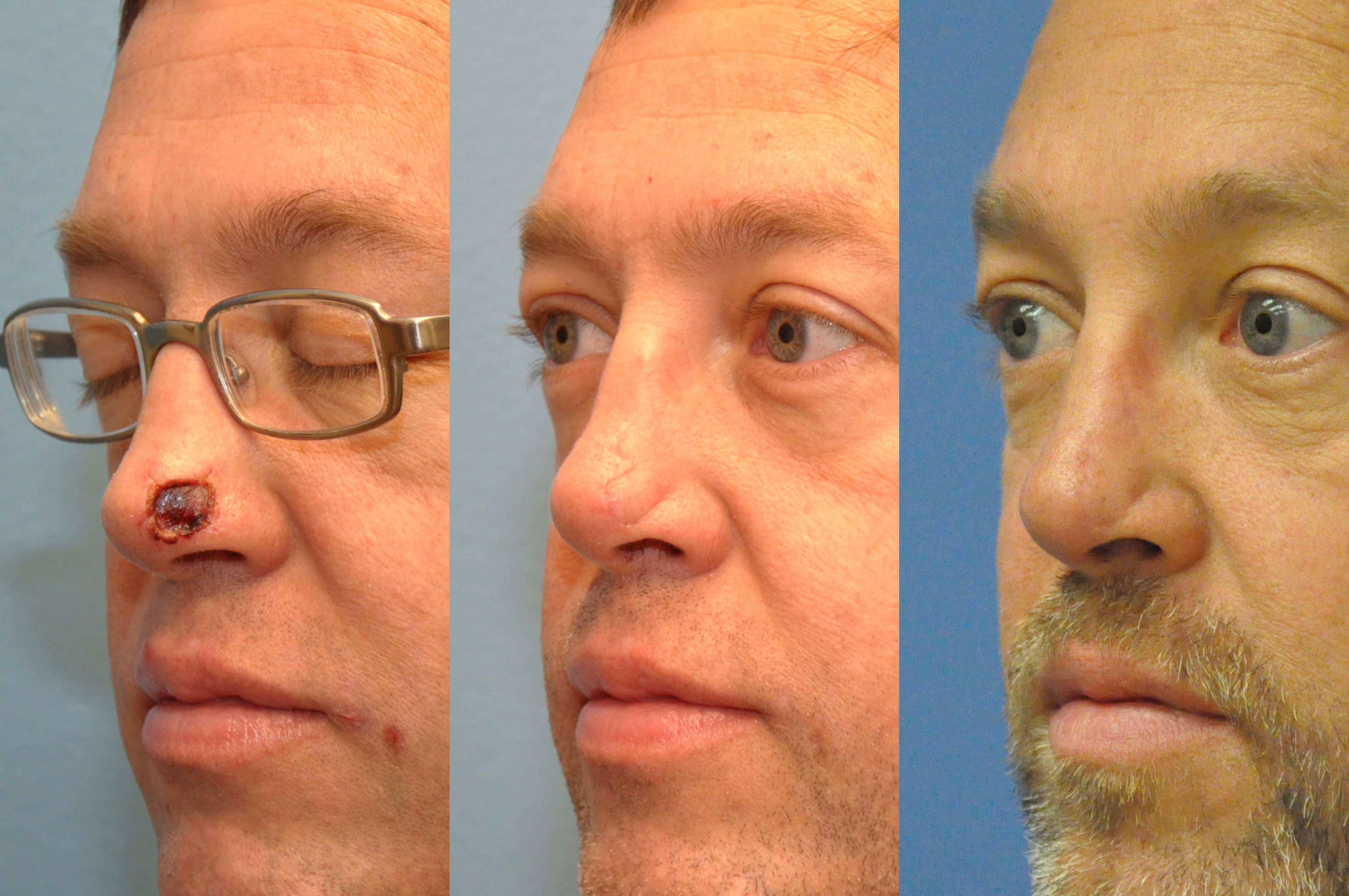 Mohs Reconstruction Of Nasal Defect Following Removal Of Basal Cell Carcinoma Lebeau Clinic Basal Cell Carcinoma Basal Cell Skin Care Clinic
