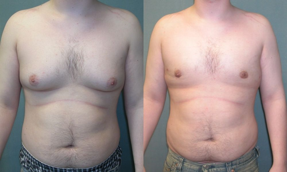 Male Breast Reduction Gynecomastia Deal With Enlarged Male