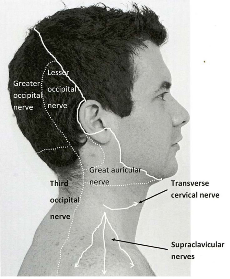 Occipital Nerve Areas affected by pain: