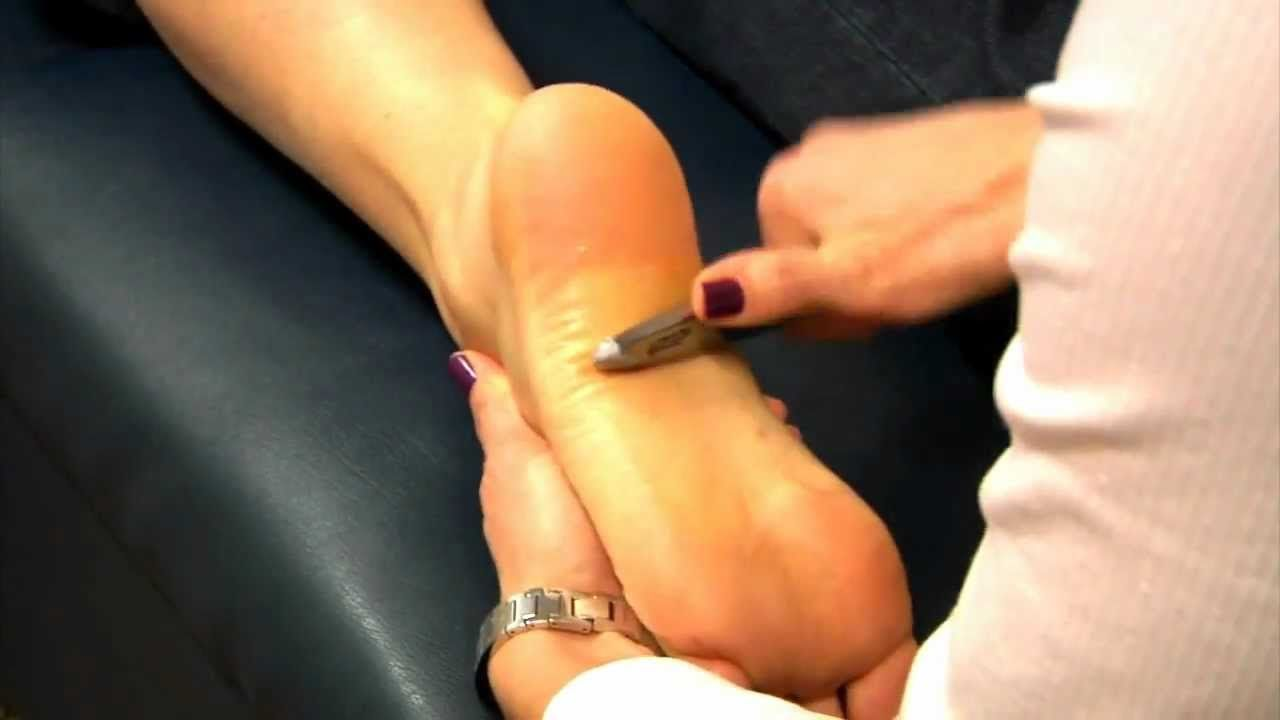 scraping the plantar fascia