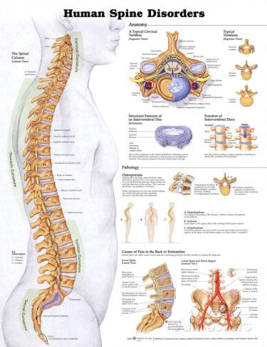 Human Spine Disorders Anatomical Chart Poster Print Exercise