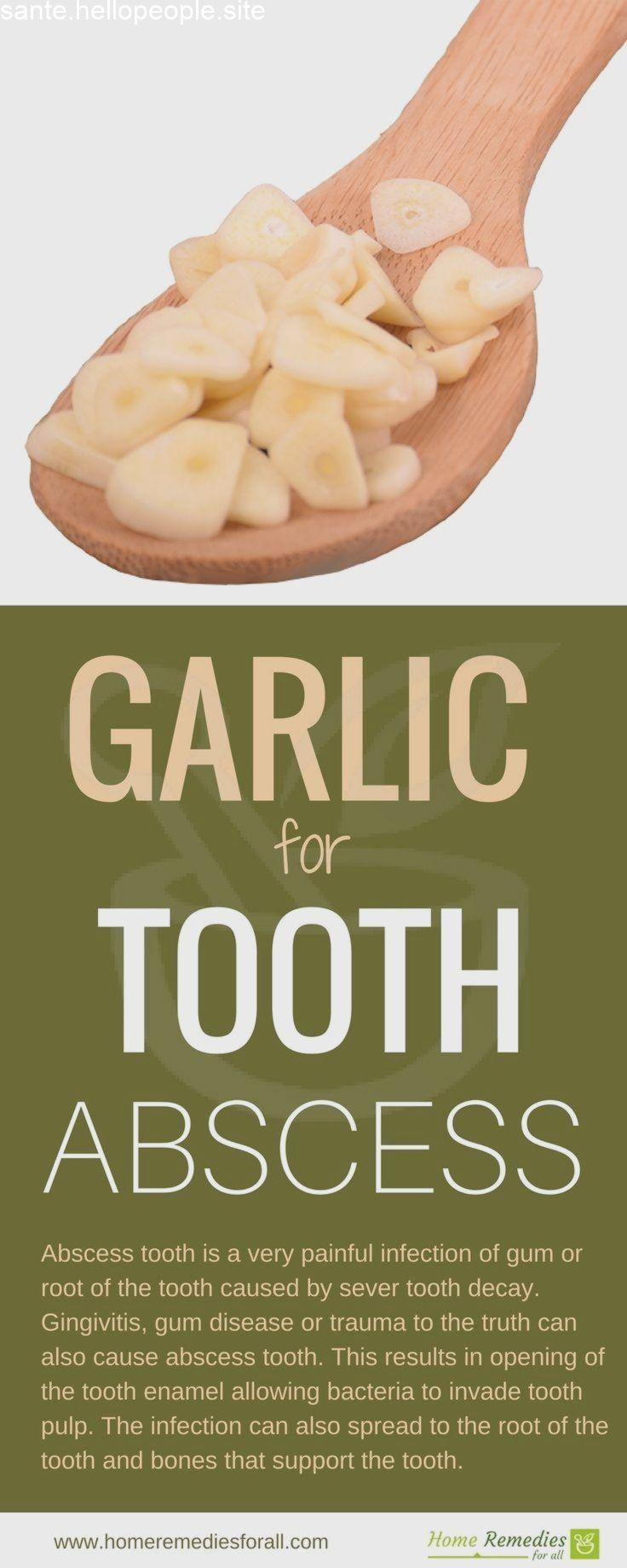 Cavités dentaires désagréables dans la couronne