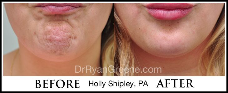 dysport botox injection to mentalis muscle for reduction of chin