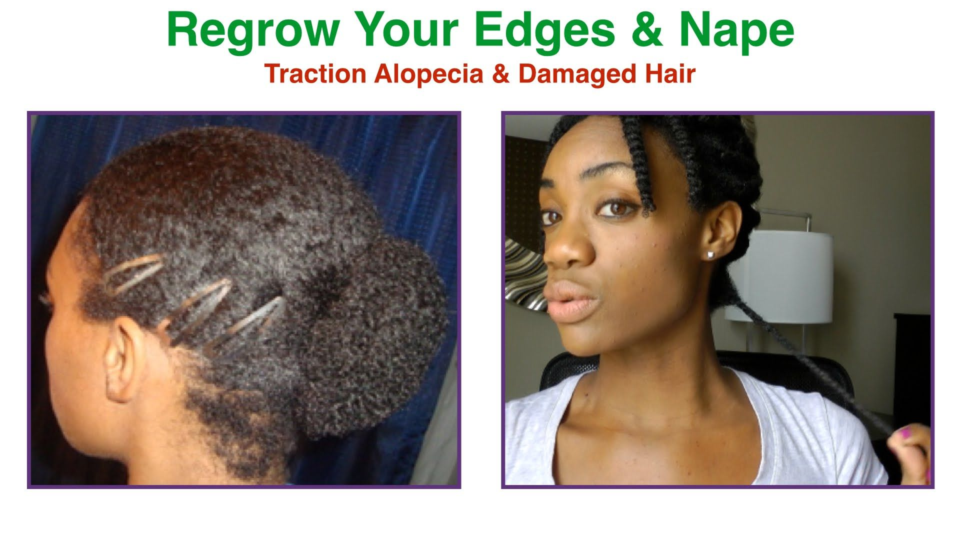 how to regrow & protect thin damaged edges & nape | traction