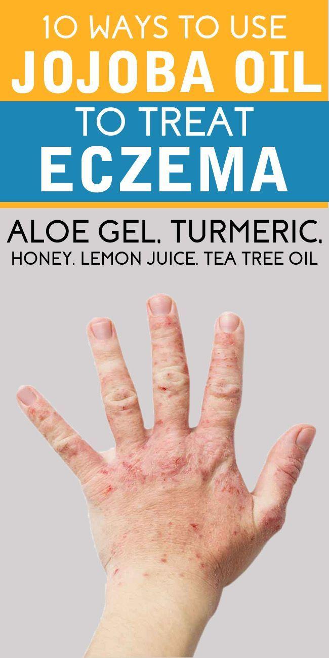 How to use jojoba oil for eczema – 10 methods #jojobaoil