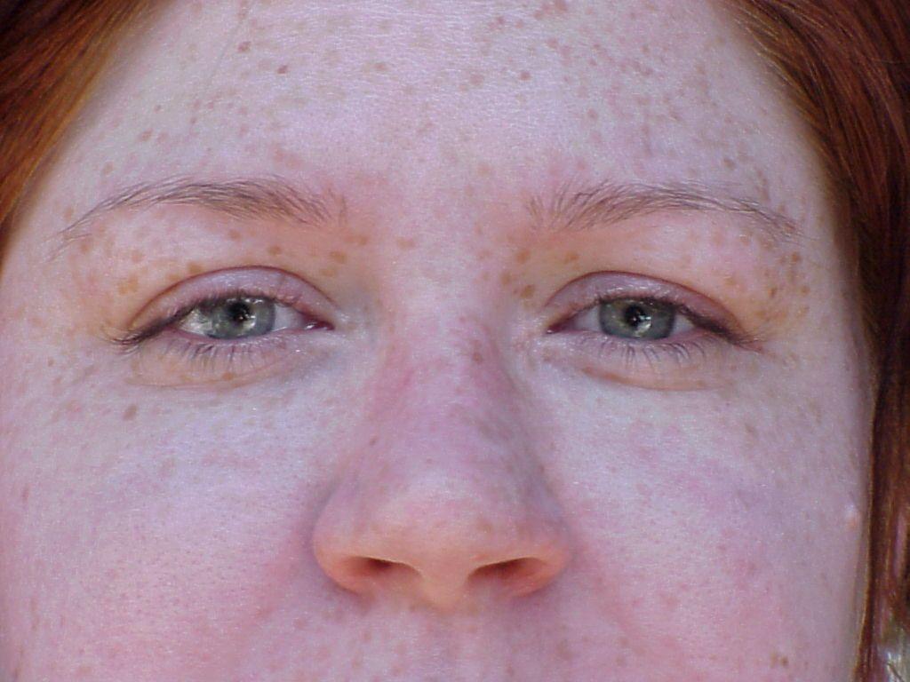 applying xtreme lashes eyelash extensions to ...
