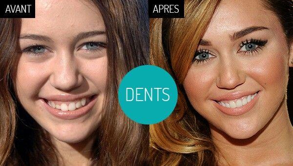 en dents de scie - Traducere în română - exemple în franceză | Reverso Context