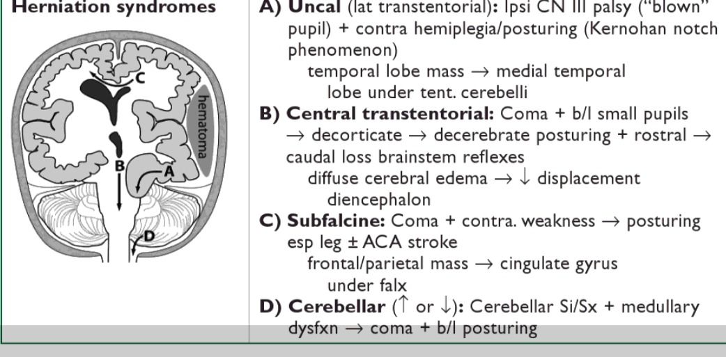 brain herniation syndrome uncal herniation clinical triad of 1 blown pupil 2 hemiplegia 3 coma