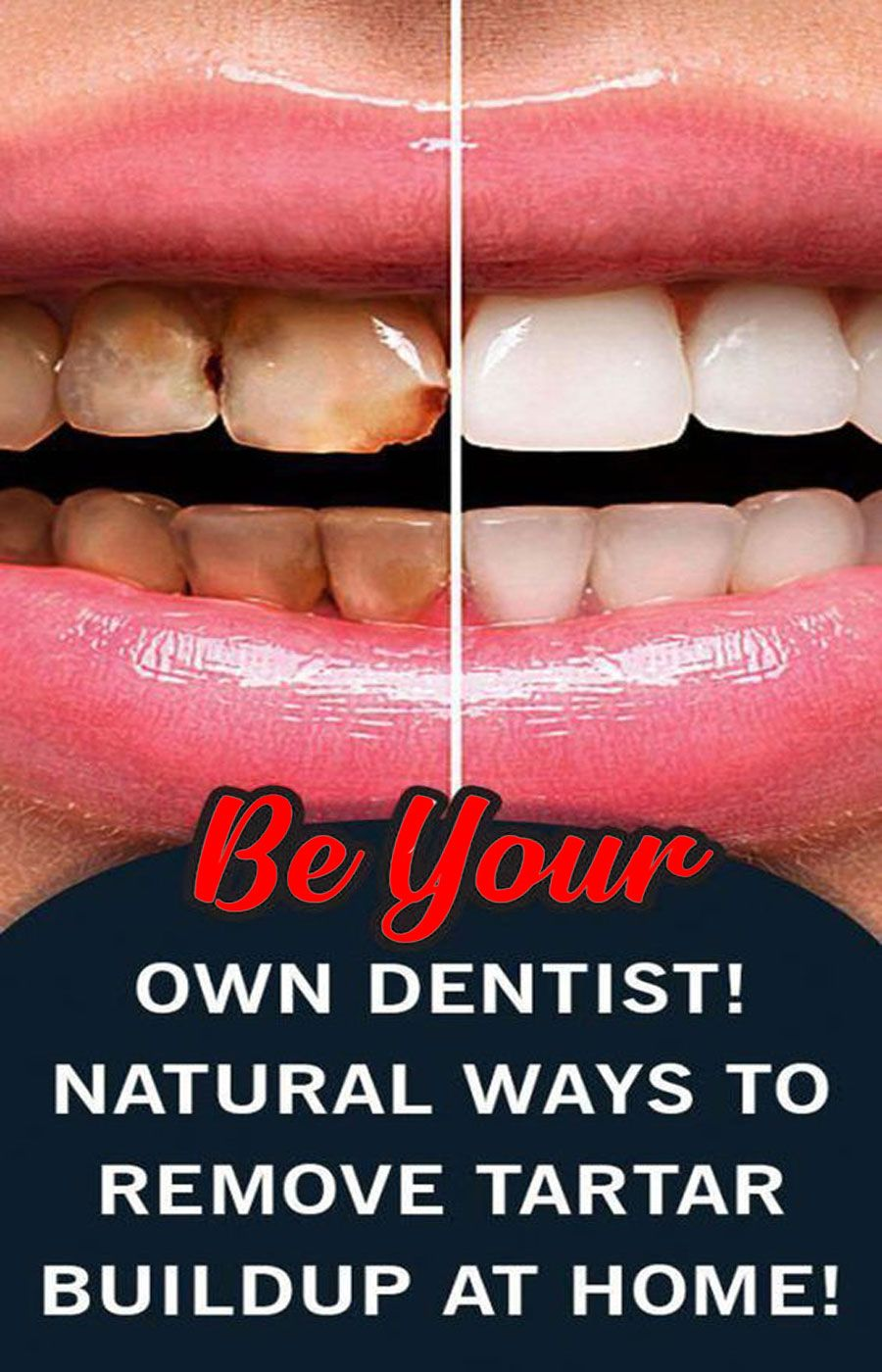 7 Simple Ways To Naturally Whiten Your Teeth At Home In 2020 Dentist Oral Health Care Oral Care