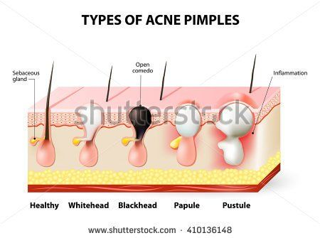 Acne pimple diagram library of wiring diagram types of acne pimples healthy skin whiteheads and blackheads rh pinterest ca pimple popping sweat pimples ccuart Gallery