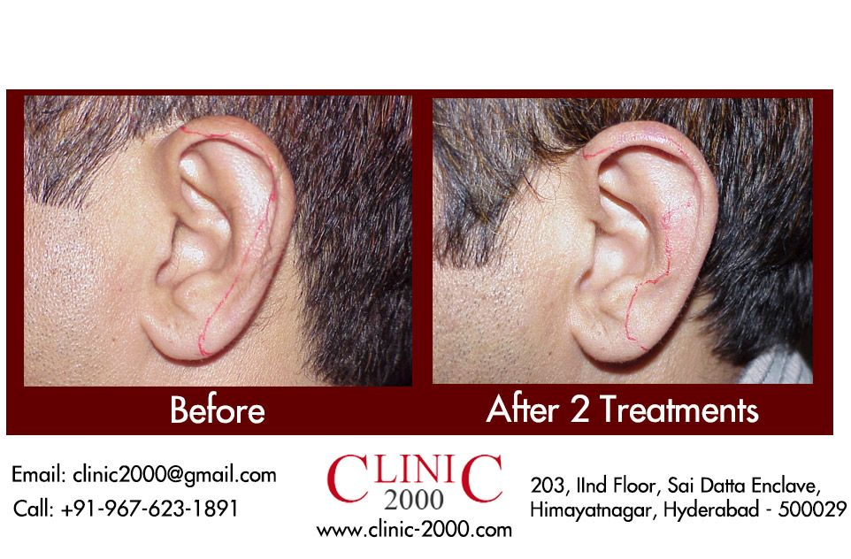 Ear Hair Permanent Removal Modern Men Are Equally Diligent Of
