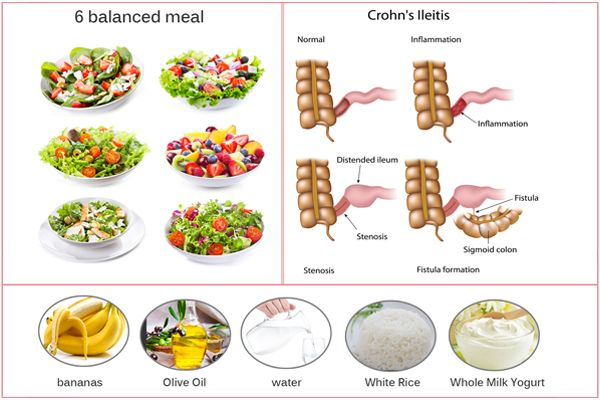 Résultat d'images pour aliementation crohn