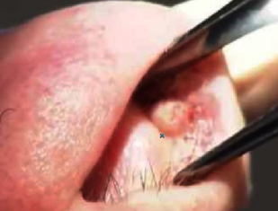 Bump inside nose causes   http://www healthncare org