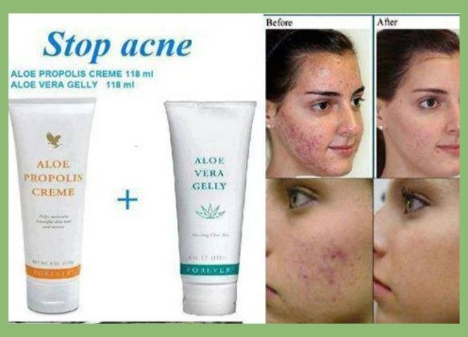 Best Way To Get Rid Of Acne Overnight
