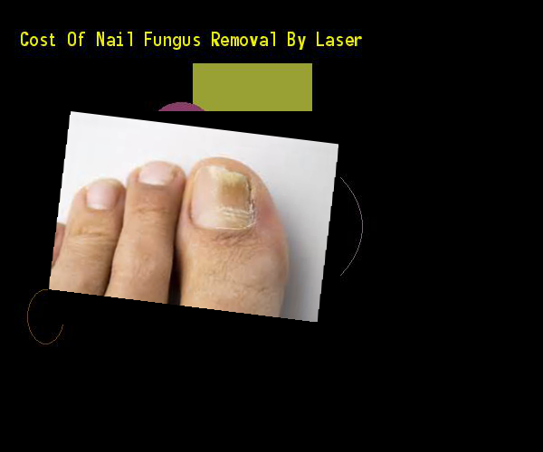 Cost of nail fungus removal by laser - Nail Fungus Remedy. You have nothing to lose! Visit Site Now