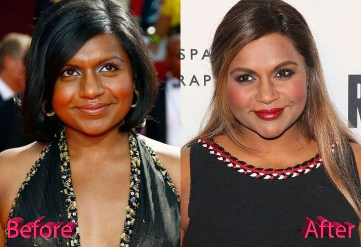 Mindy Kaling Plastic Surgery Is One Of Those That Have Produced