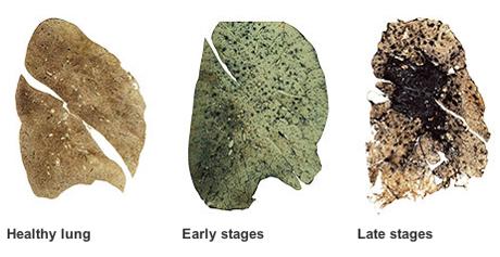 Black Lung Disease Natural Treatments