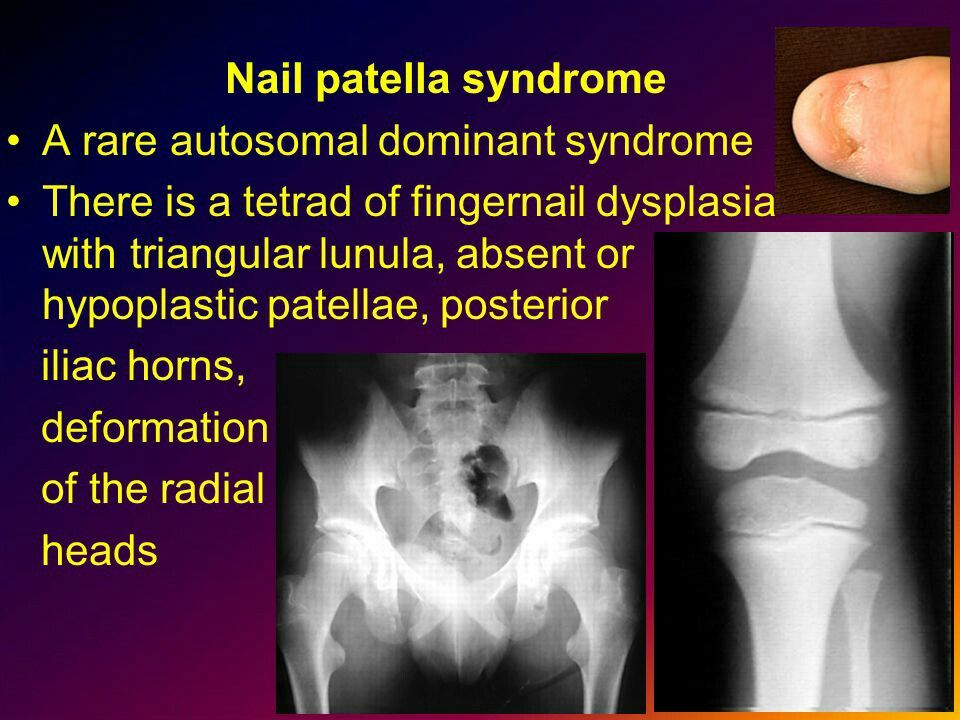 Nail patella syndrome | syndrome | Pinterest | Radiology