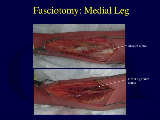 fasciotomies peroneal nerve - Google Search