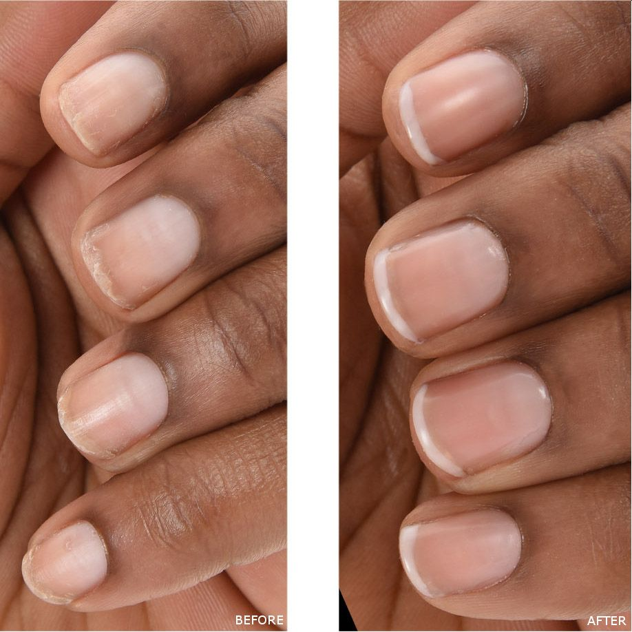 The Naked Manicure: Discoloration Before and After | The Naked ...