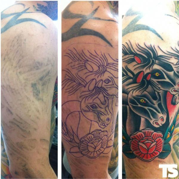 Laser Tattoo Removal Tips #laser #removal #tattoo # ...