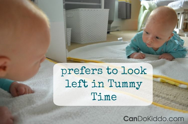 Positional Plagiocephaly What To Do If Your Baby S Head Has A Flat Spot Cando Kiddo Baby Helmet Baby Head Flat Head Syndrome