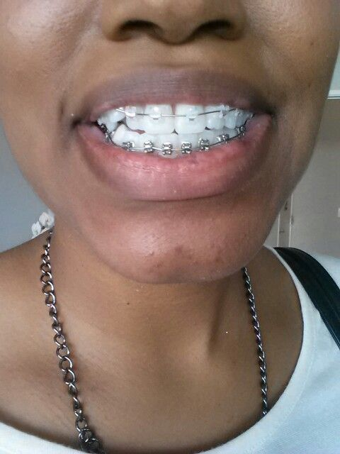 Two Year Plan Clear On Top And Metal On The Bottom Brace