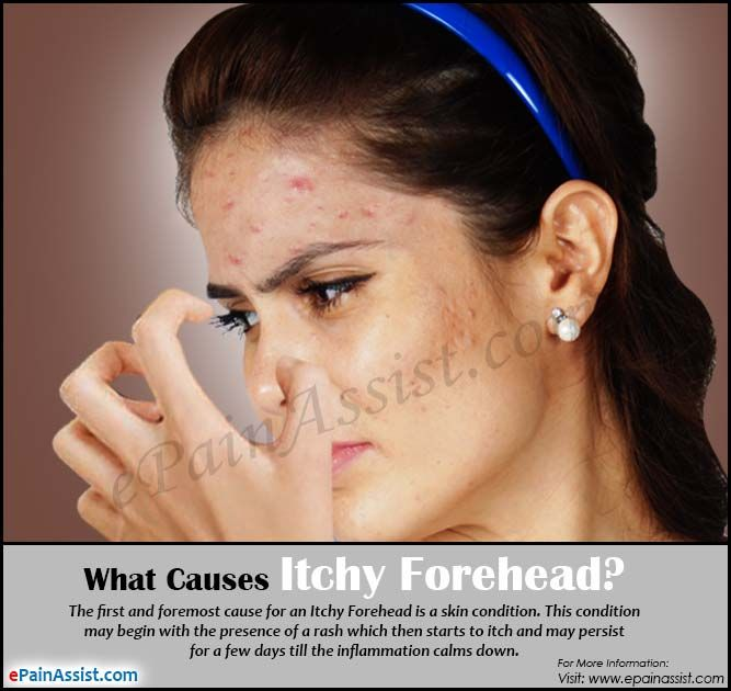 Causes of Itchy Forehead & Way to Get Rid of it | Skin