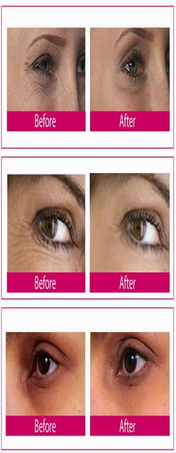How to Get Rid of Dark Circles Under Eyes | Cute Health ...