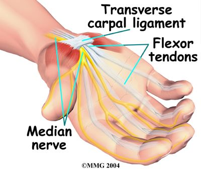 Patient Handout: Carpal Tunnel Syndrome Anatomy, Flexor Tendons | I ...