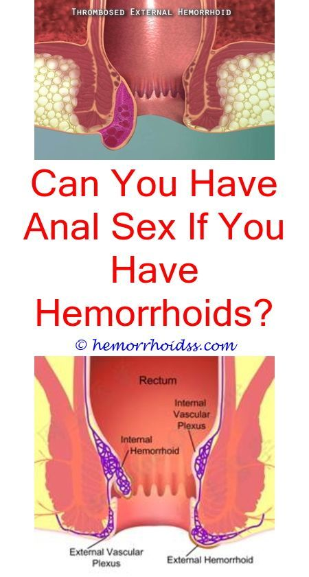 Can you have anal sex if you have a hemroid