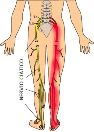 PROBLEMAS DE CIÁTICA | Pinterest | Dolor de ciatica, Anatomía y Masaje